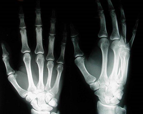 radiografias rayos x