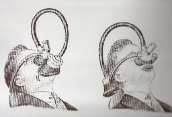 Aparato de Ricard Aparato de anestesia para administración de cloroformo.