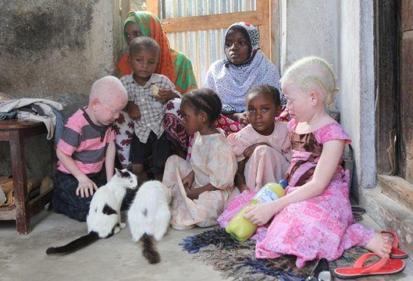 Que es ser albino