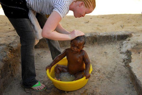 Ser albino en africa