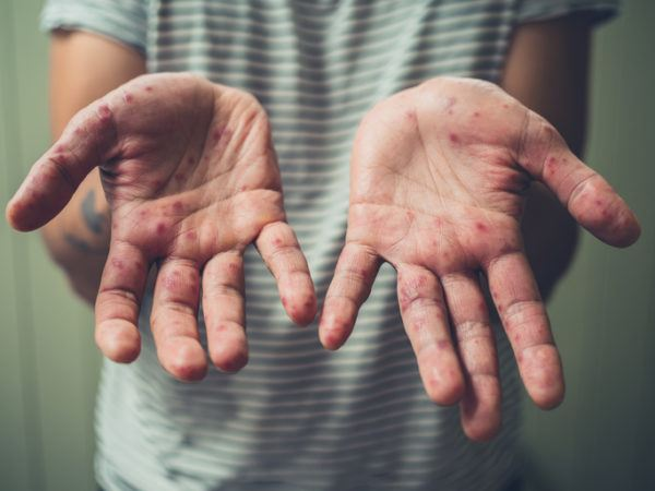 Cuales han sido las pandemias que han afectado al mundo manos