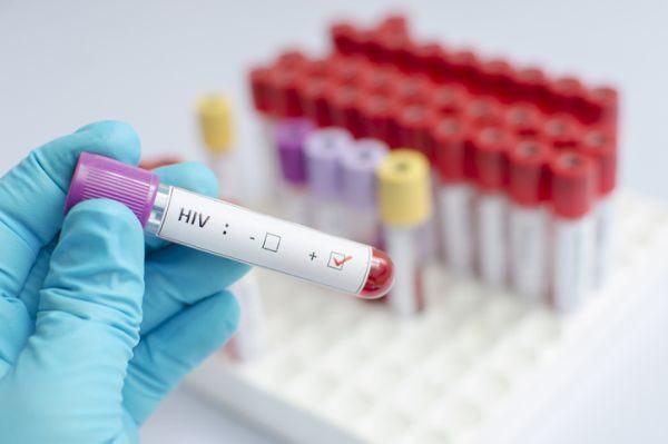 pandemias-de-la-historia-sida-istock